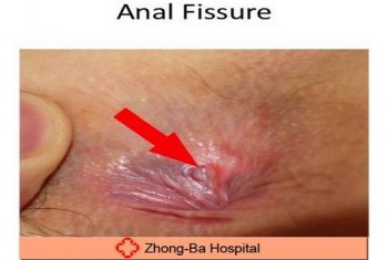 anal fissure: symptoms and treatments, Skeleton