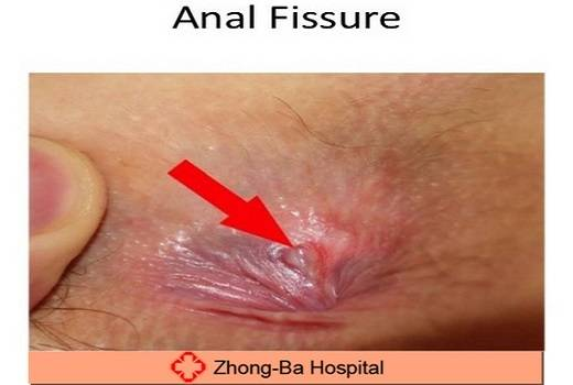 how to treat anal fissure, Skeleton