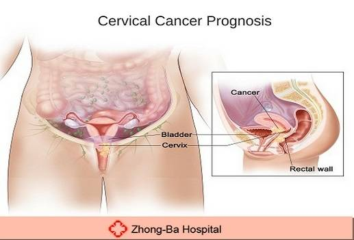 cervical cancer prognosis