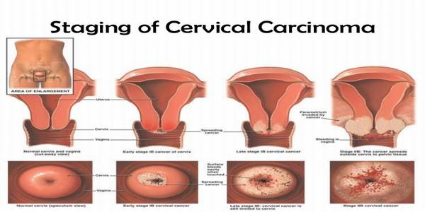 carcinoma of cervix