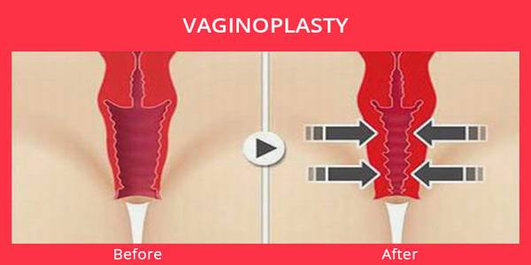 Vaginal Rejuvenation American Society of Plastic Surgeons
