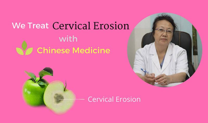 cervical in women