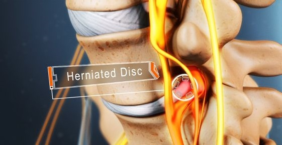 lumbar disc herniation treatment