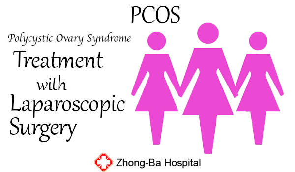 PCOS Treatment with Laparoscopic Surgery