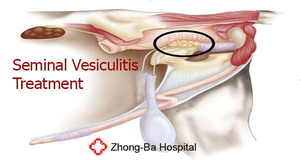 seminal vesiculitis treatment