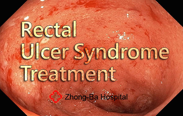 rectal ulcer treatment
